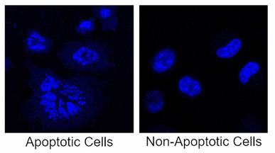 Mouse fibroblast cells with & without chemotherapy treatment. Image by Katherine Aney '19, Brian Hastings '19 and Christian Kelly '19